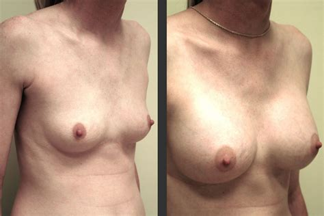 Breast augmentation virginia beach, breast implants jpg 750x500